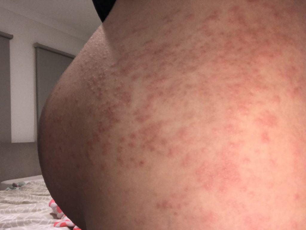 蕁 麻疹 上り 風呂